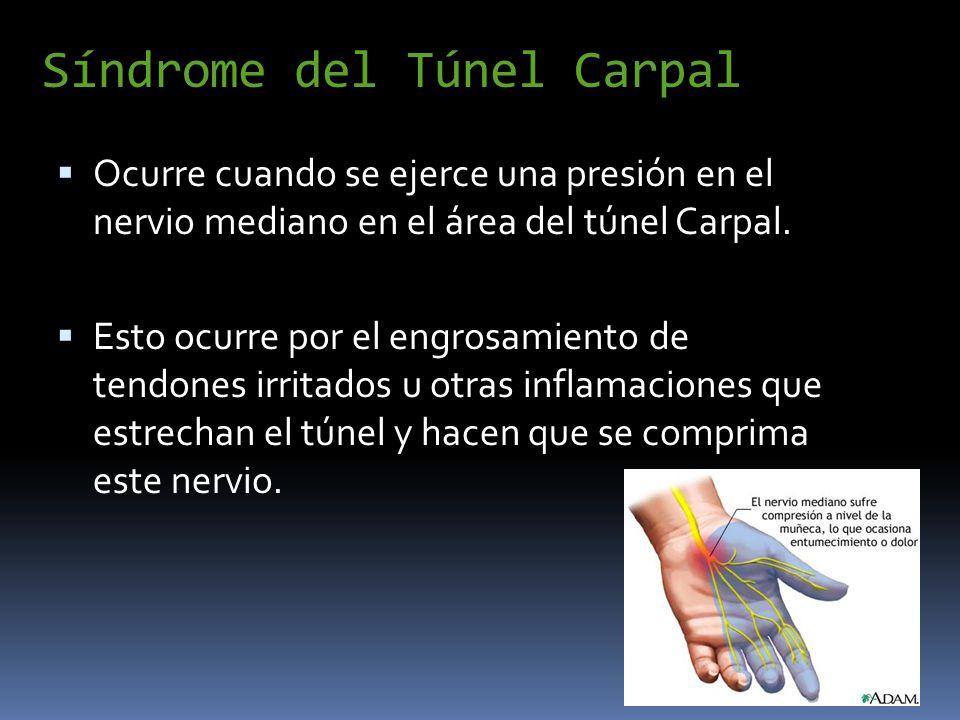 Síndrome del Túnel Carpal