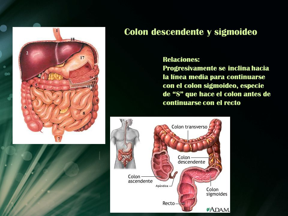 Colon descendente y sigmoideo