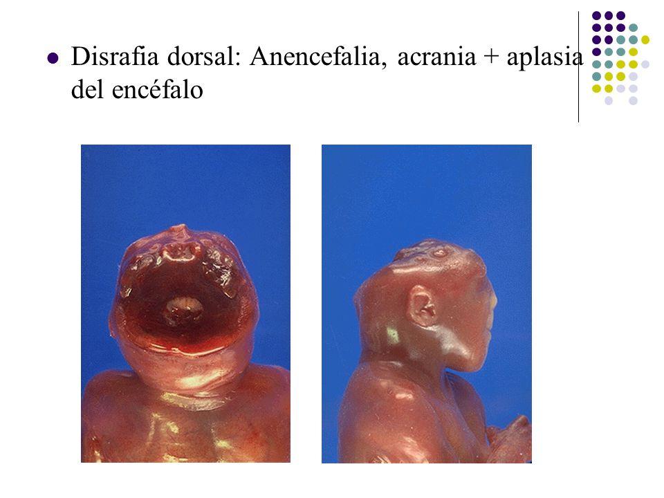 Disrafia dorsal: Anencefalia, acrania + aplasia del encéfalo
