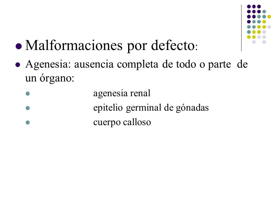 Malformaciones por defecto: