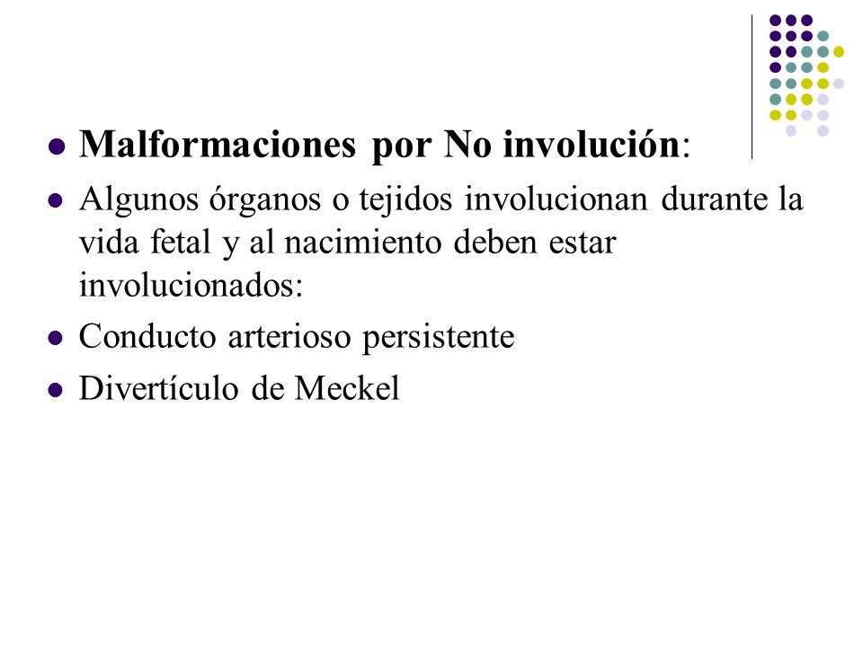 Malformaciones por No involución: