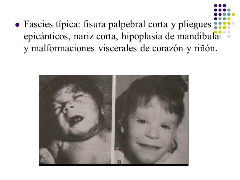 Fascies típica: fisura palpebral corta y pliegues epicánticos, nariz corta, hipoplasia de mandibula y malformaciones viscerales de corazón y riñón.