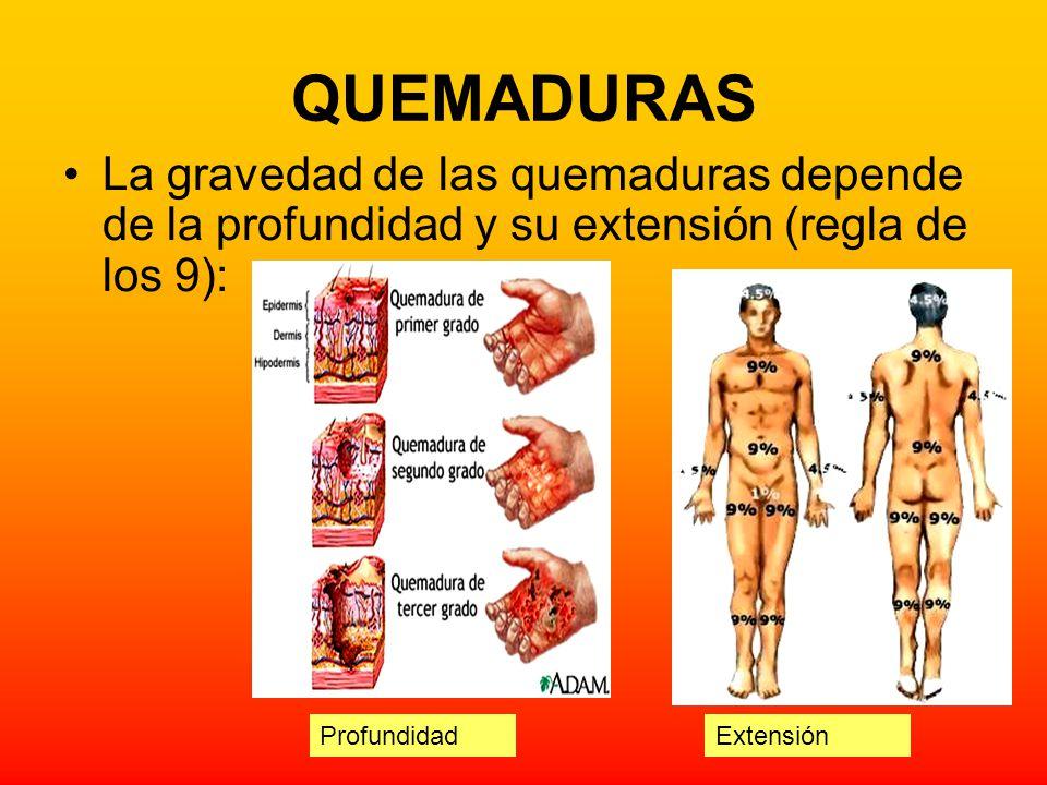 QUEMADURAS La gravedad de las quemaduras depende de la profundidad y su extensión (regla de los 9):