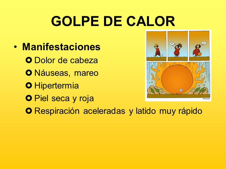 GOLPE DE CALOR Manifestaciones Dolor de cabeza Náuseas, mareo
