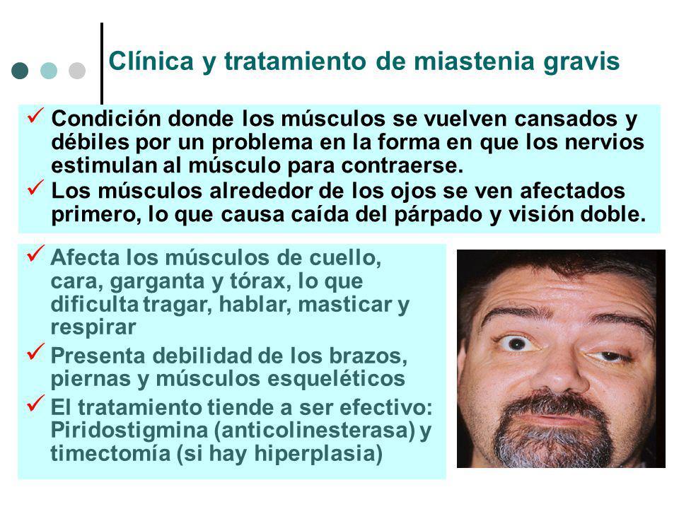 Clínica y tratamiento de miastenia gravis