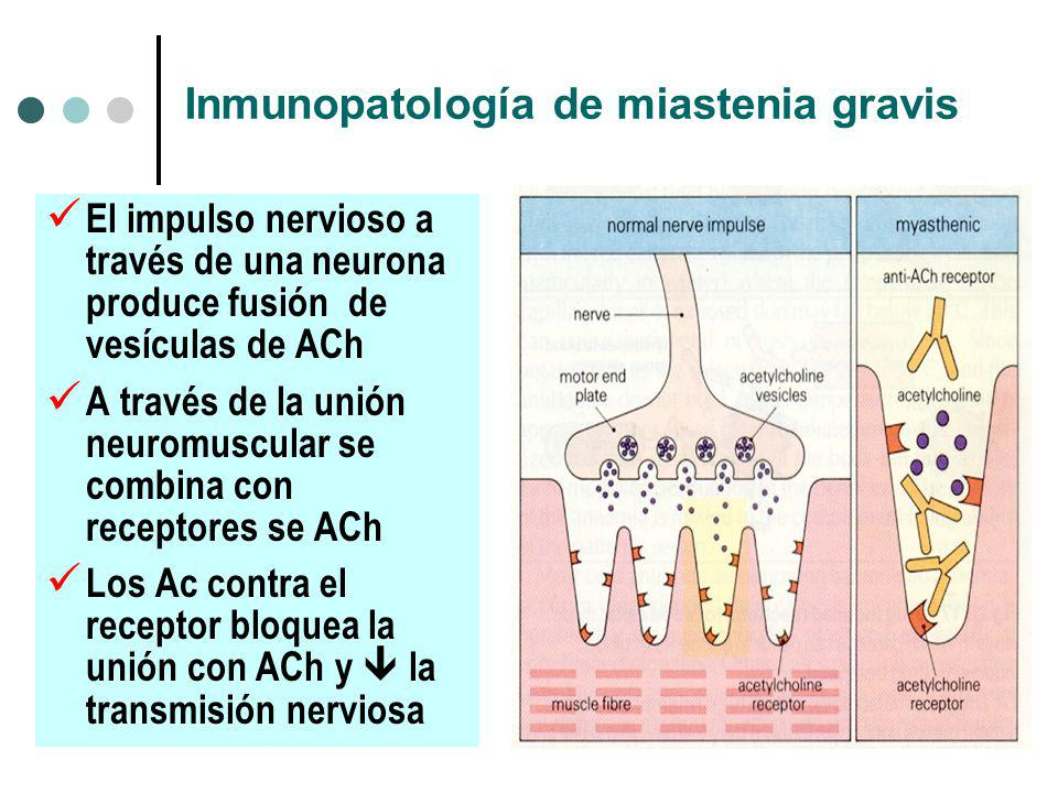 Inmunopatología de miastenia gravis