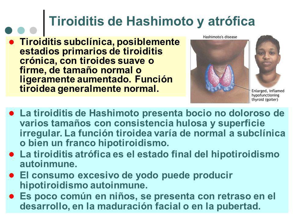 Tiroiditis de Hashimoto y atrófica