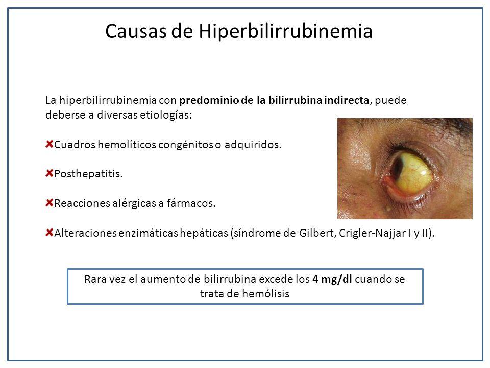 Causas de Hiperbilirrubinemia