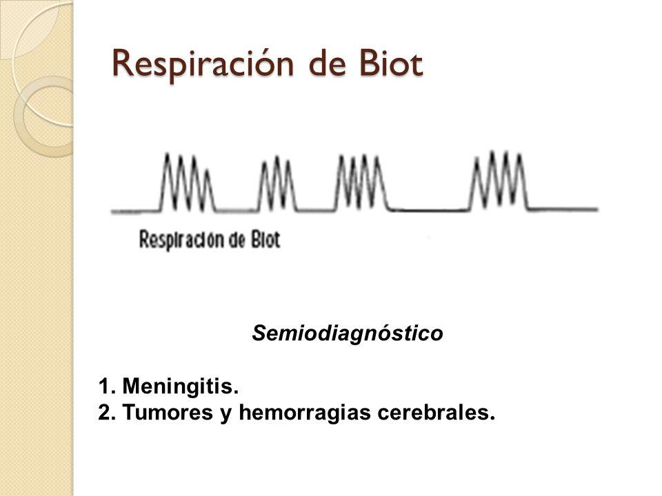 Respiración de Biot Semiodiagnóstico 1. Meningitis.