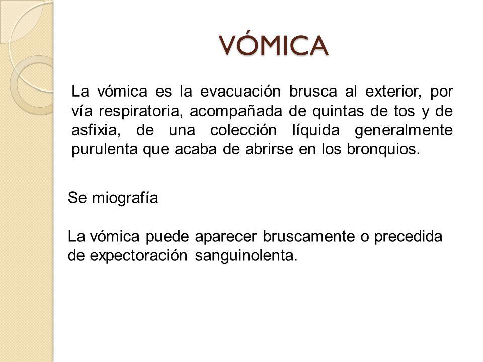VÓMICA