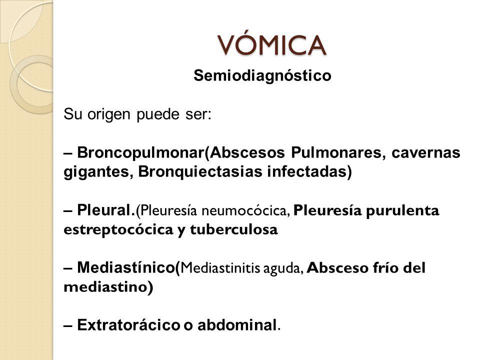 VÓMICA Semiodiagnóstico Su origen puede ser: