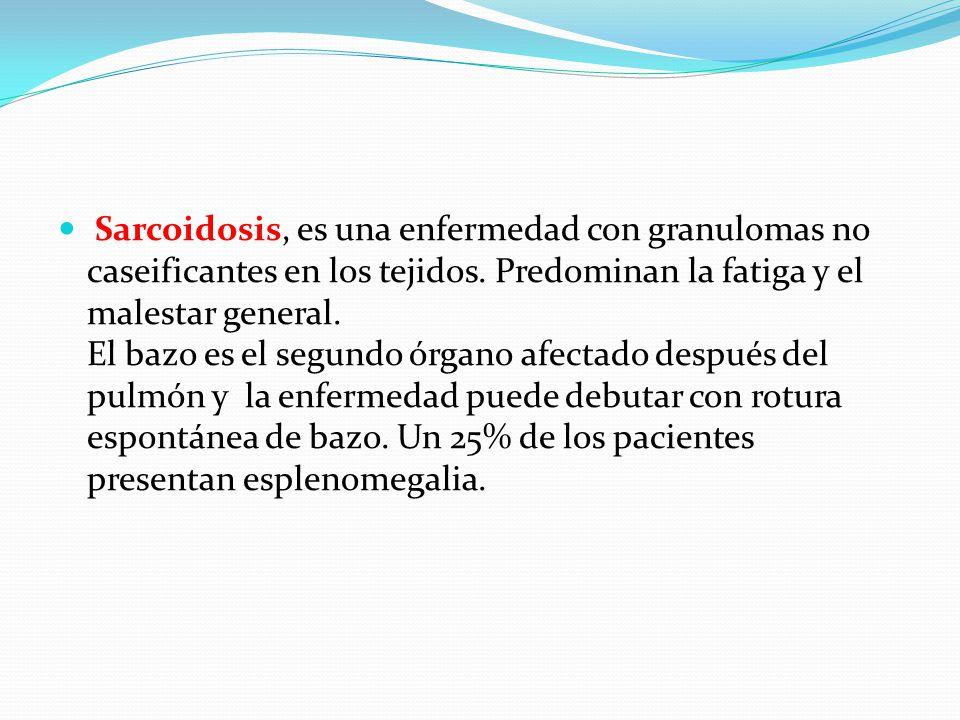 Sarcoidosis, es una enfermedad con granulomas no caseificantes en los tejidos.
