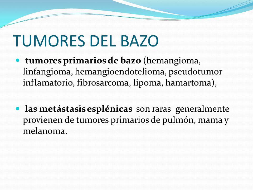 TUMORES DEL BAZO tumores primarios de bazo (hemangioma, linfangioma, hemangioendotelioma, pseudotumor inflamatorio, fibrosarcoma, lipoma, hamartoma),