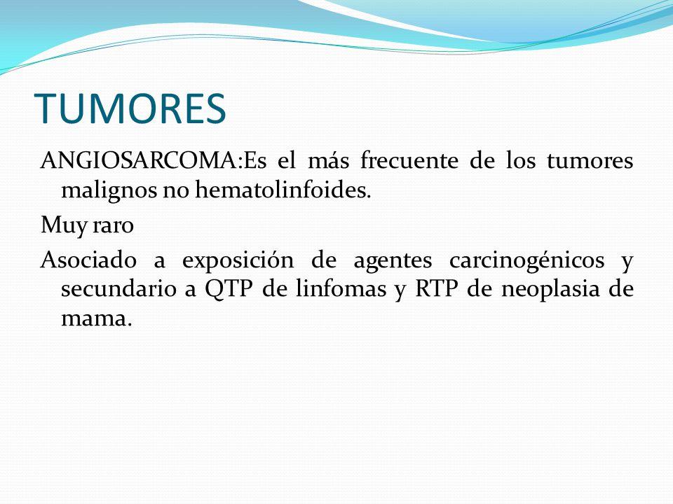 TUMORES ANGIOSARCOMA:Es el más frecuente de los tumores malignos no hematolinfoides. Muy raro.