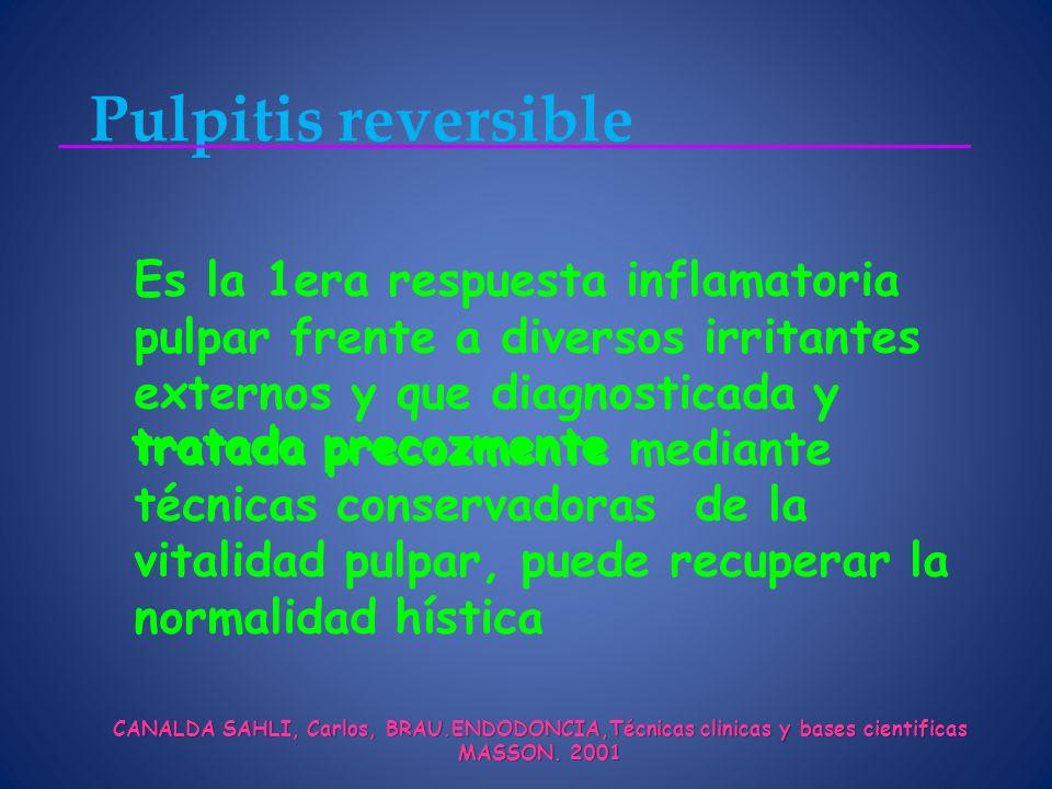 Pulpitis reversible