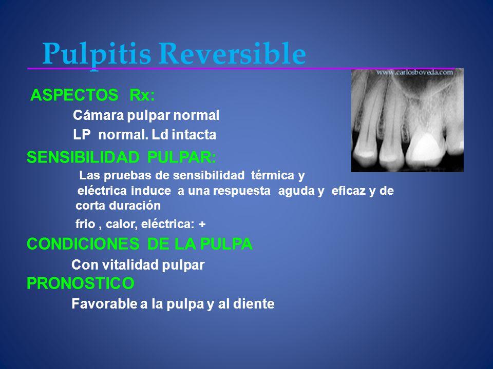 Pulpitis Reversible ASPECTOS Rx: SENSIBILIDAD PULPAR: