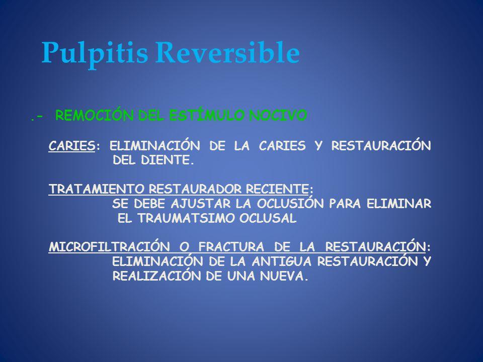 Pulpitis Reversible .- REMOCIÓN DEL ESTÍMULO NOCIVO