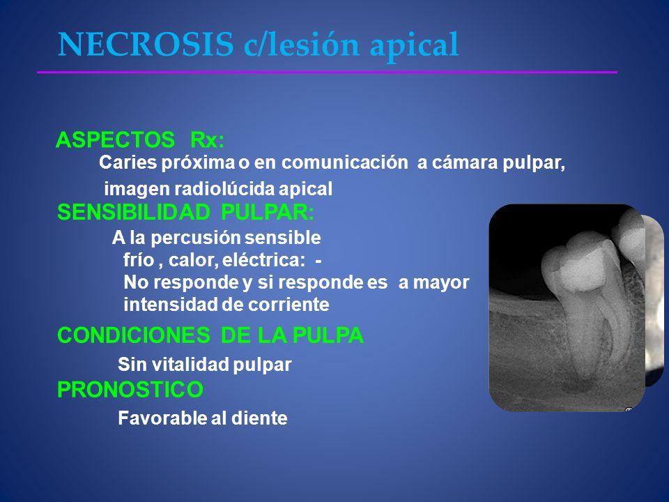 NECROSIS c/lesión apical