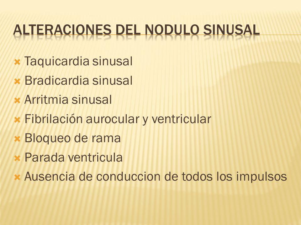 alteraciones del nodulo sinusal