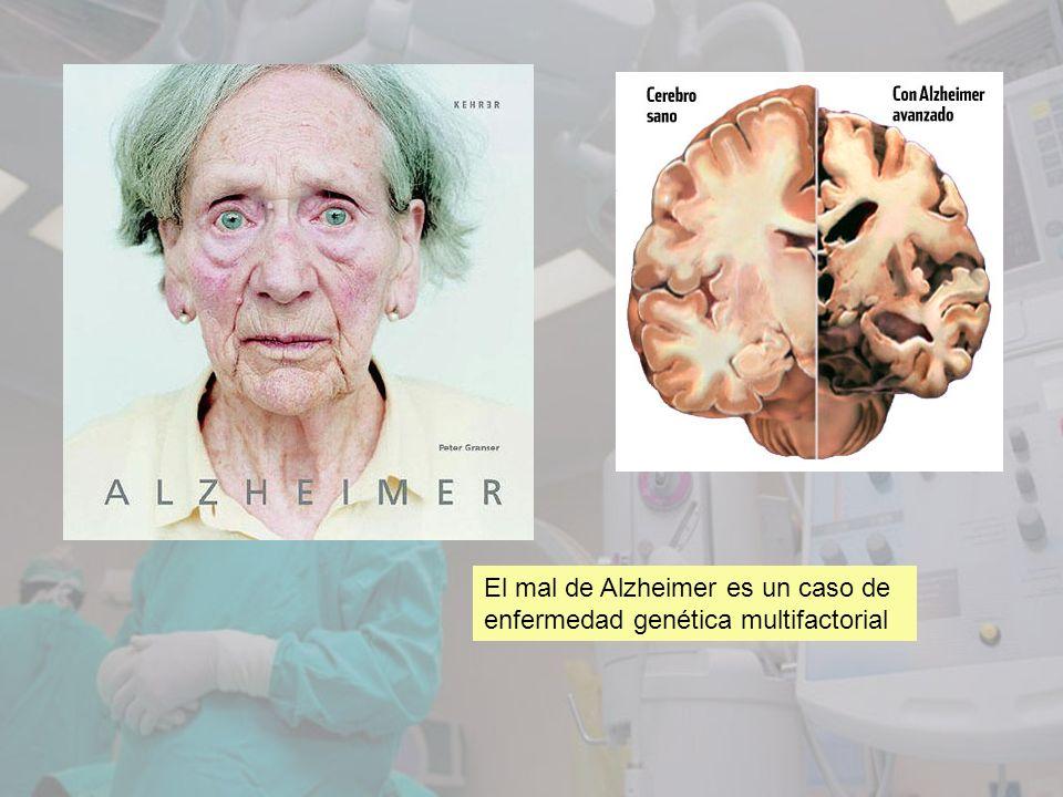 El mal de Alzheimer es un caso de enfermedad genética multifactorial