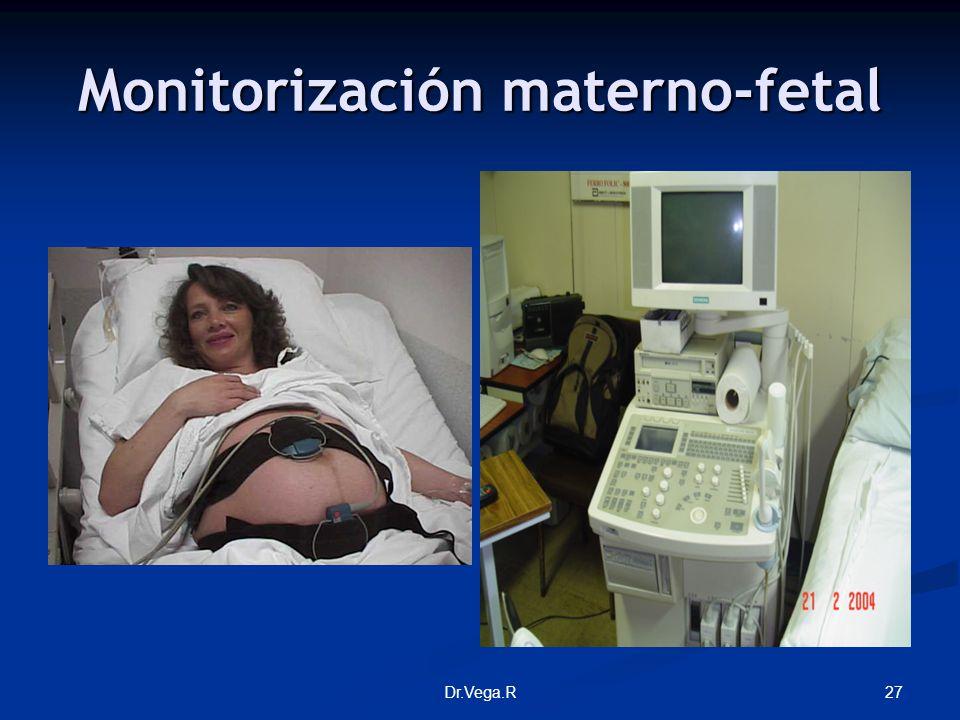 Monitorización materno-fetal