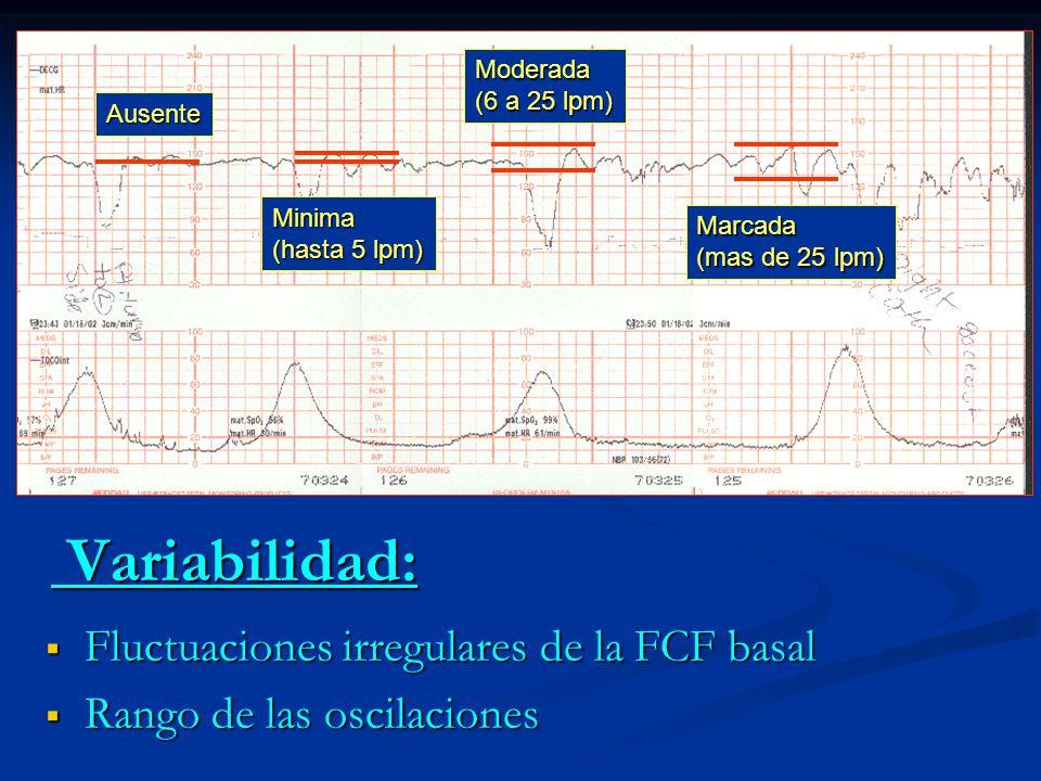 Variabilidad: Fluctuaciones irregulares de la FCF basal