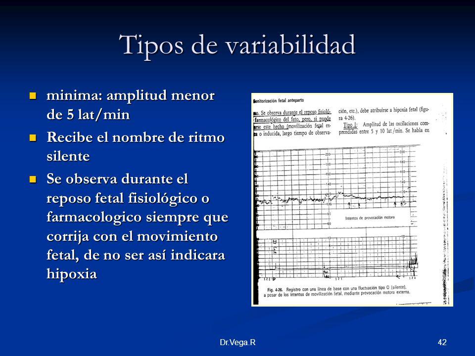 Tipos de variabilidad minima: amplitud menor de 5 lat/min