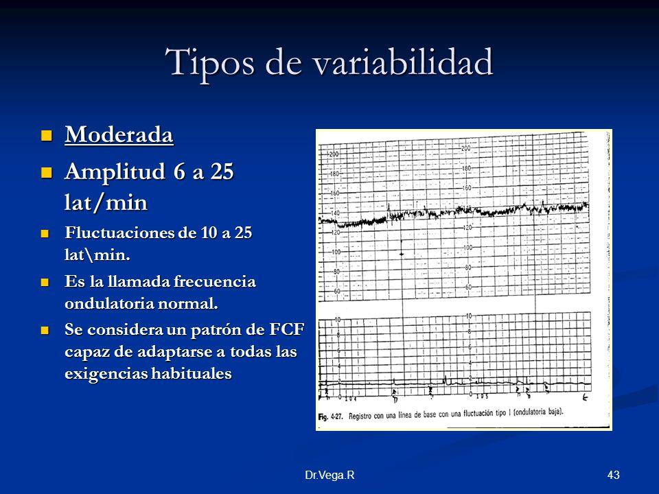 Tipos de variabilidad Moderada Amplitud 6 a 25 lat/min