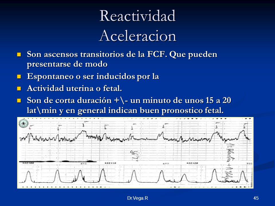 Reactividad Aceleracion