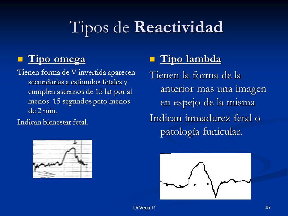 Tipos de Reactividad Tipo omega Tipo lambda
