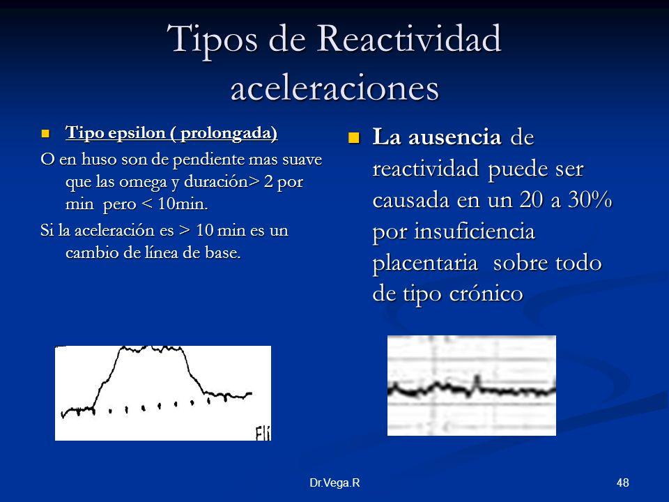 Tipos de Reactividad aceleraciones