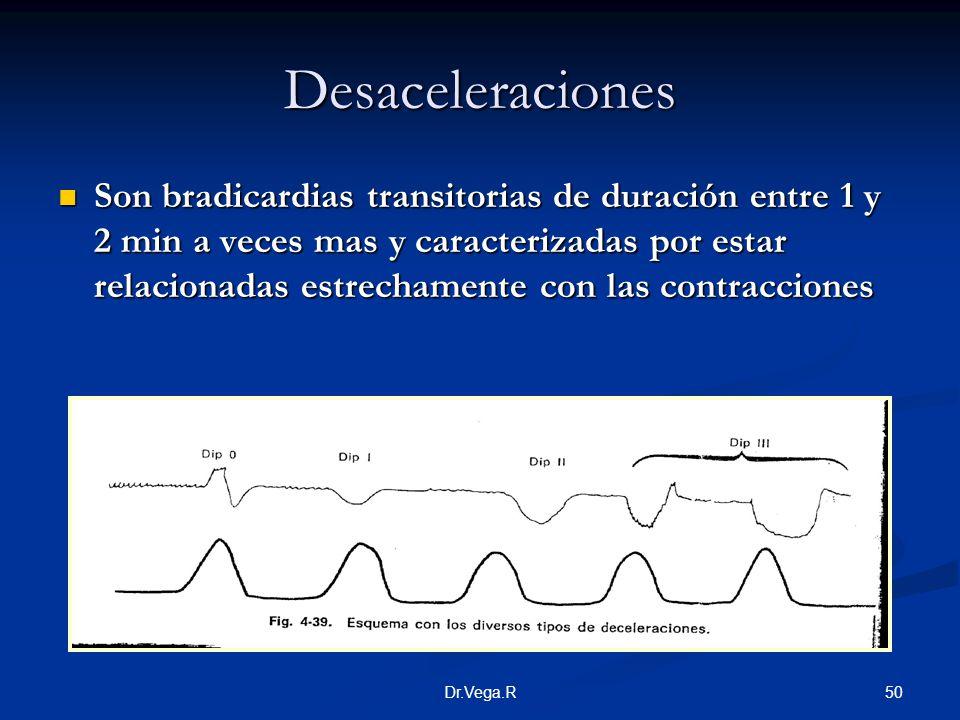 Desaceleraciones