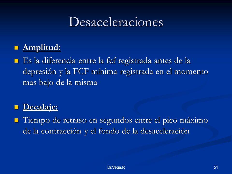 Desaceleraciones Amplitud: