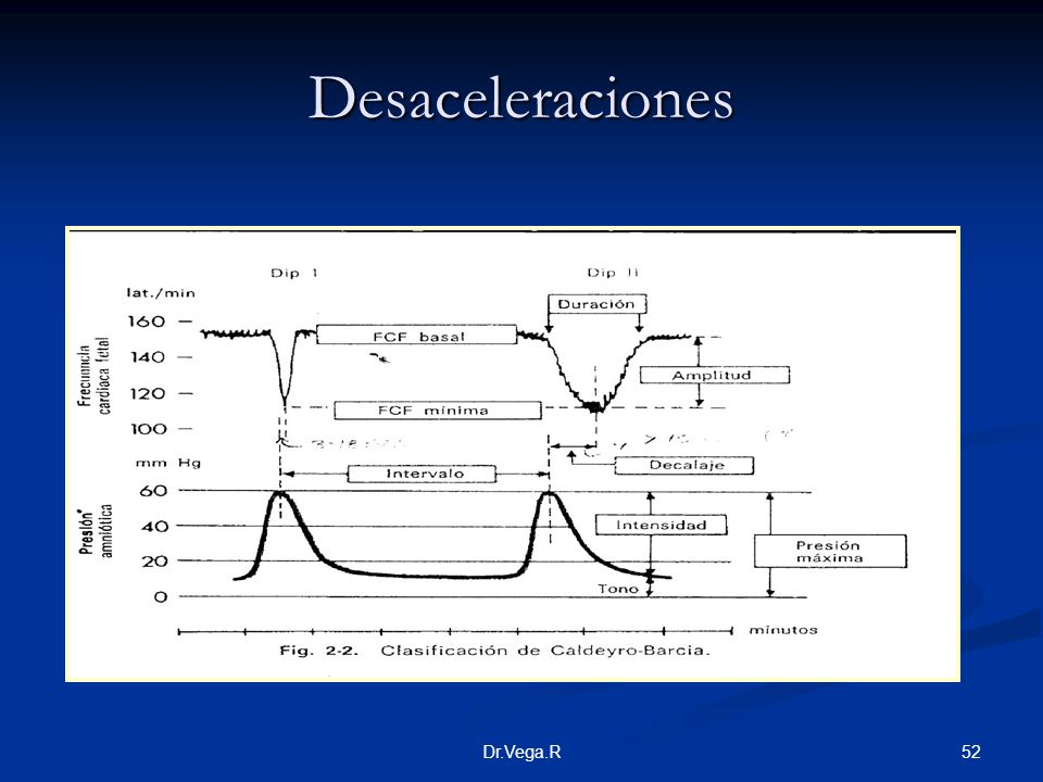Desaceleraciones Dr.Vega.R
