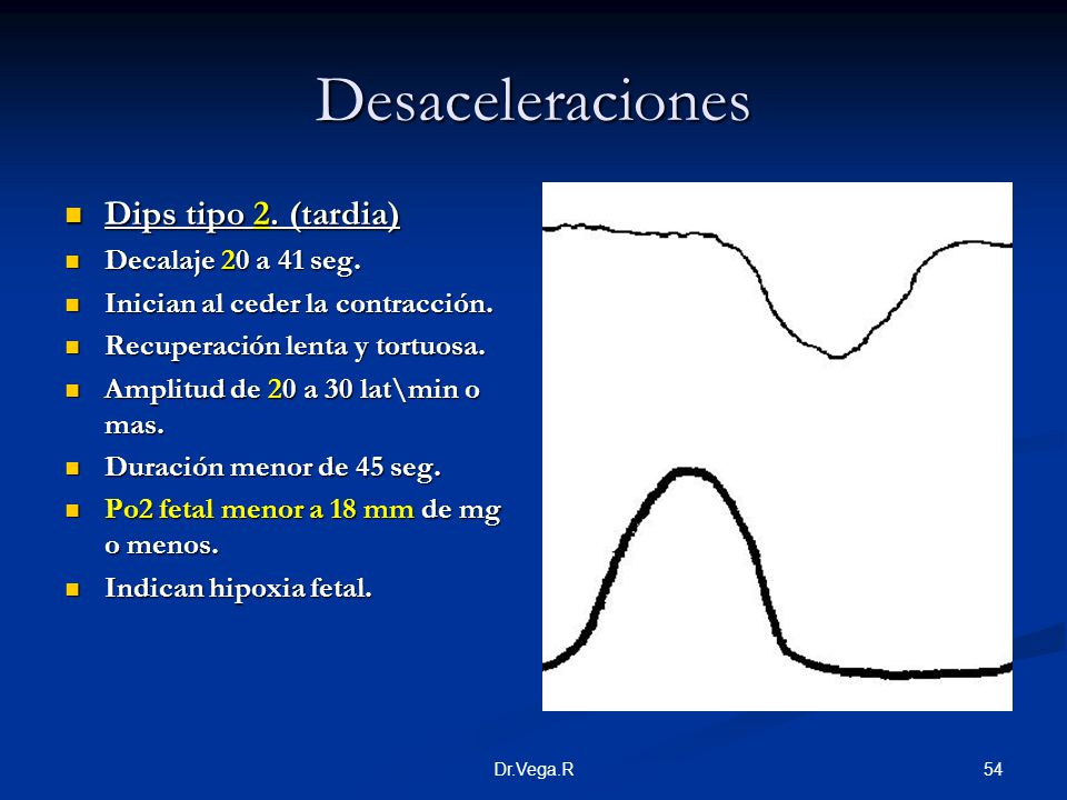 Desaceleraciones Dips tipo 2. (tardia) Decalaje 20 a 41 seg.