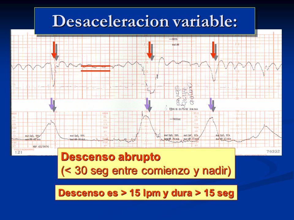 Desaceleracion variable: