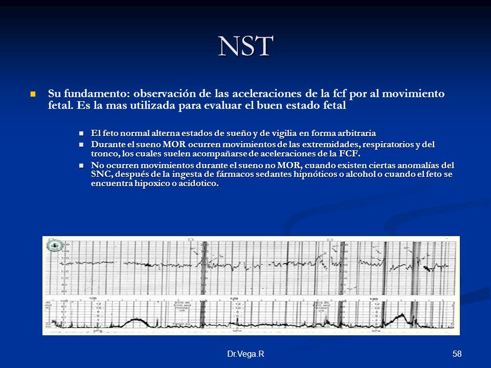NST Su fundamento: observación de las aceleraciones de la fcf por al movimiento fetal. Es la mas utilizada para evaluar el buen estado fetal.