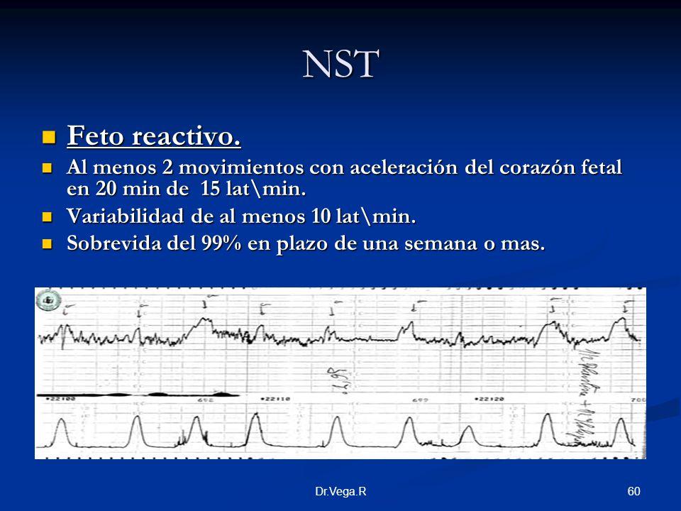 NST Feto reactivo. Al menos 2 movimientos con aceleración del corazón fetal en 20 min de 15 lat\min.