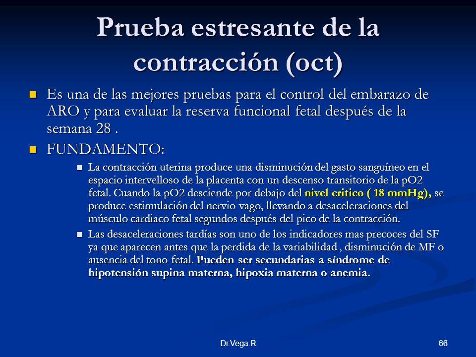 Prueba estresante de la contracción (oct)