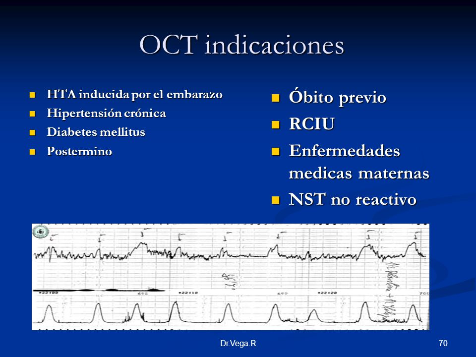 OCT indicaciones Óbito previo RCIU Enfermedades medicas maternas