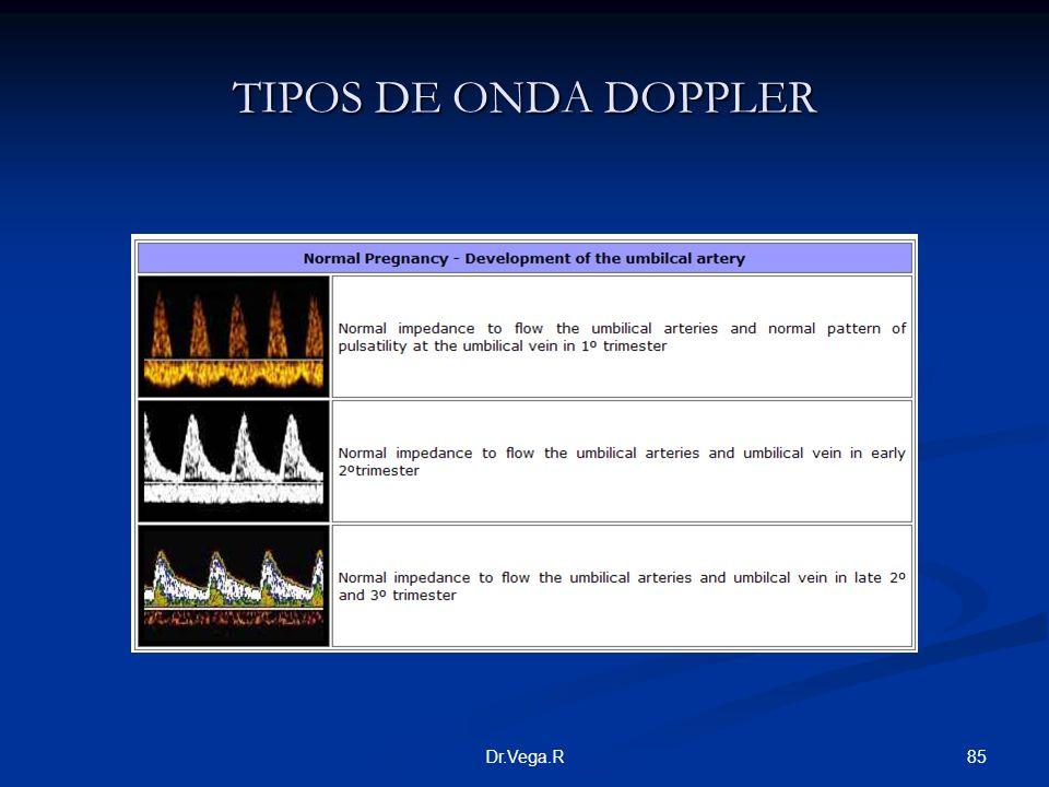TIPOS DE ONDA DOPPLER Dr.Vega.R