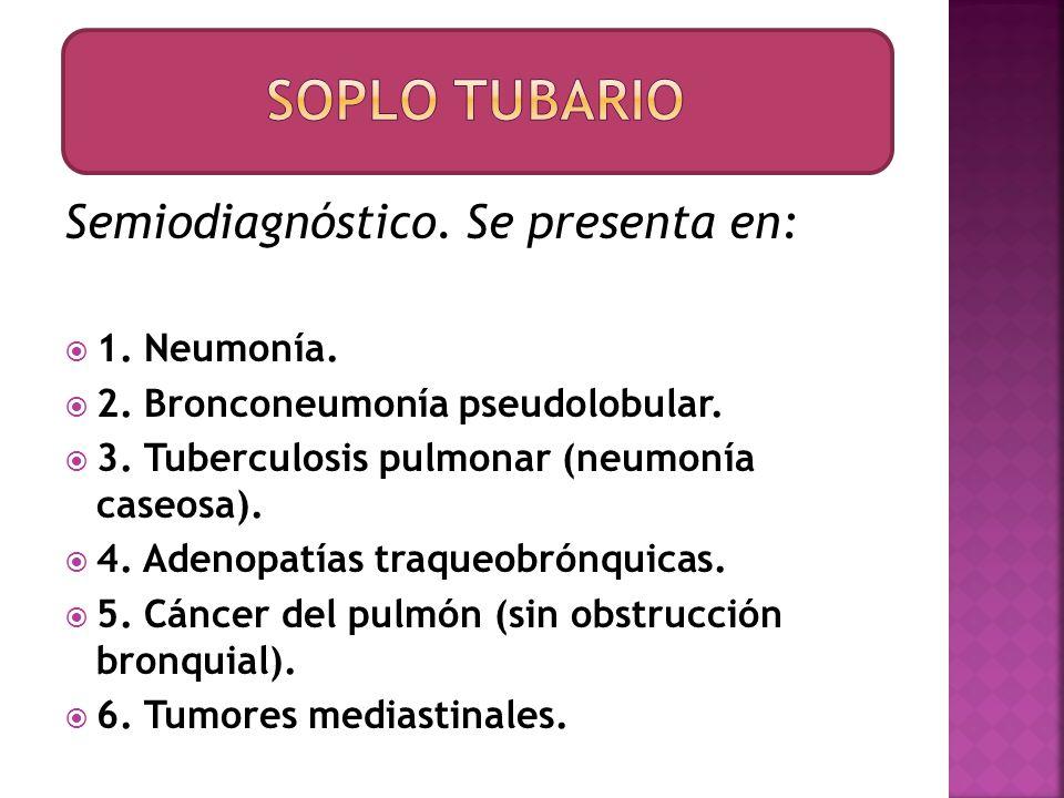 Soplo tubario Semiodiagnóstico. Se presenta en: 1. Neumonía.