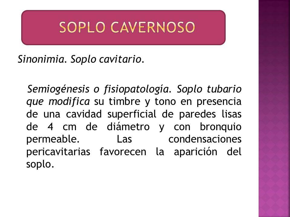 Soplo cavernoso