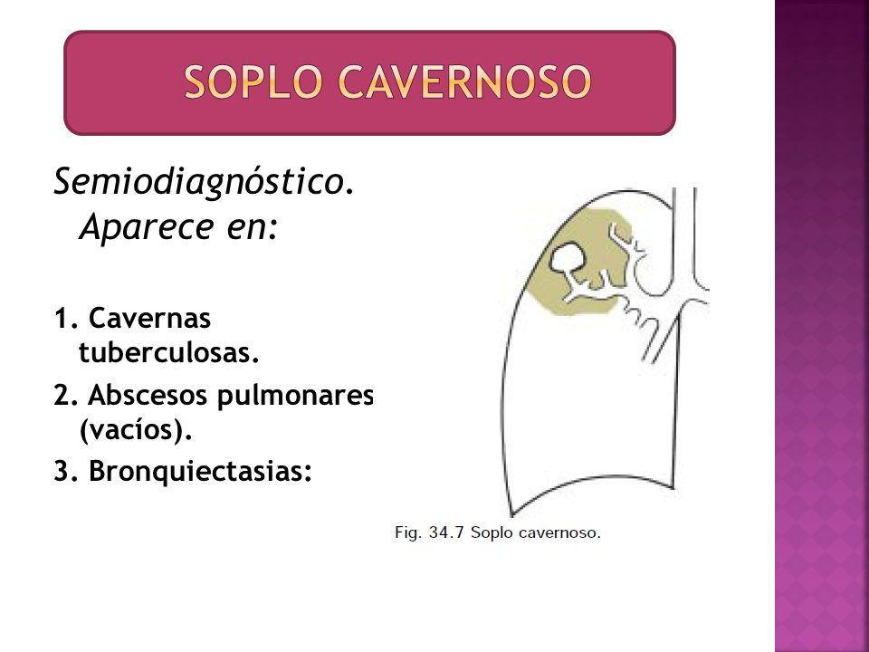Soplo cavernoso Semiodiagnóstico. Aparece en: