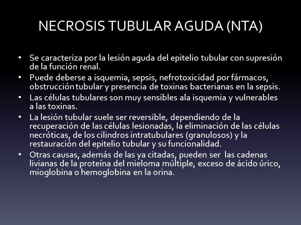 NECROSIS TUBULAR AGUDA (NTA)