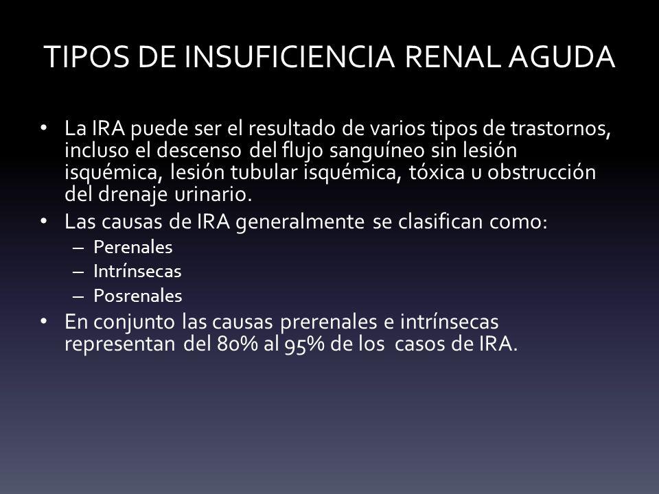 TIPOS DE INSUFICIENCIA RENAL AGUDA