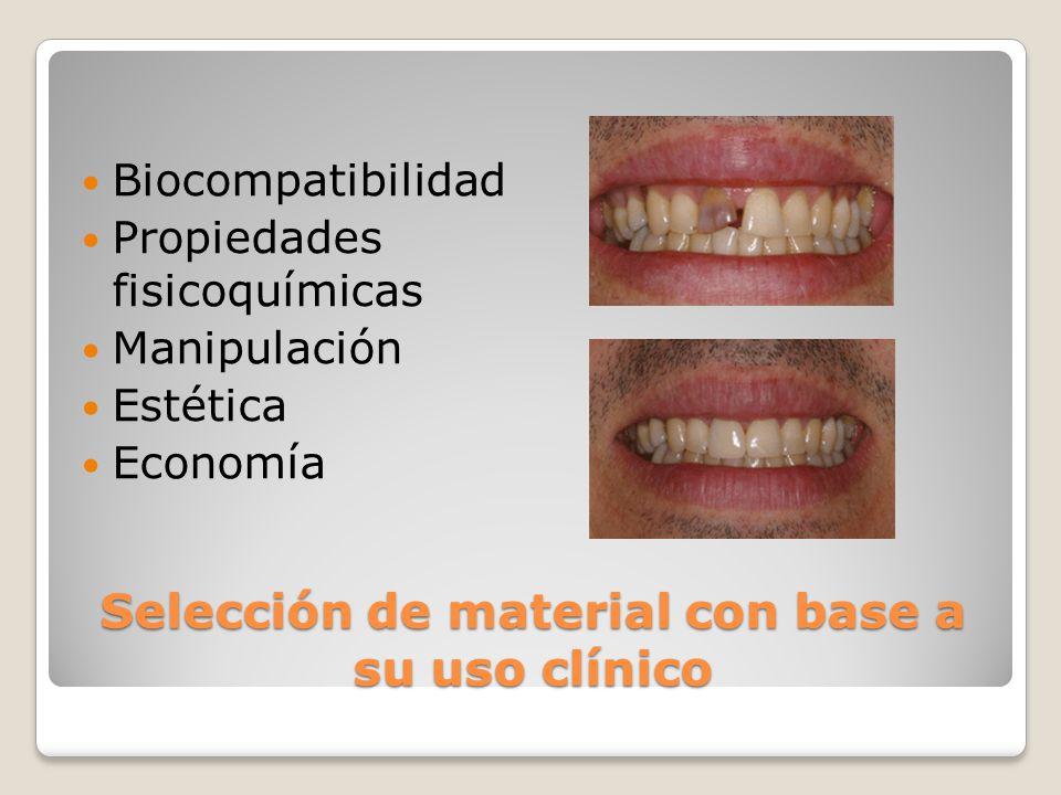 Selección de material con base a su uso clínico
