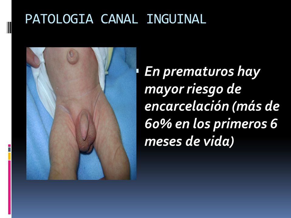 PATOLOGIA CANAL INGUINAL