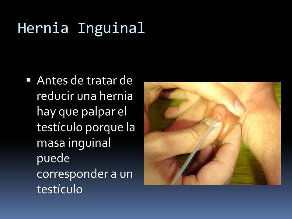 Hernia Inguinal Antes de tratar de reducir una hernia hay que palpar el testículo porque la masa inguinal puede corresponder a un testículo.