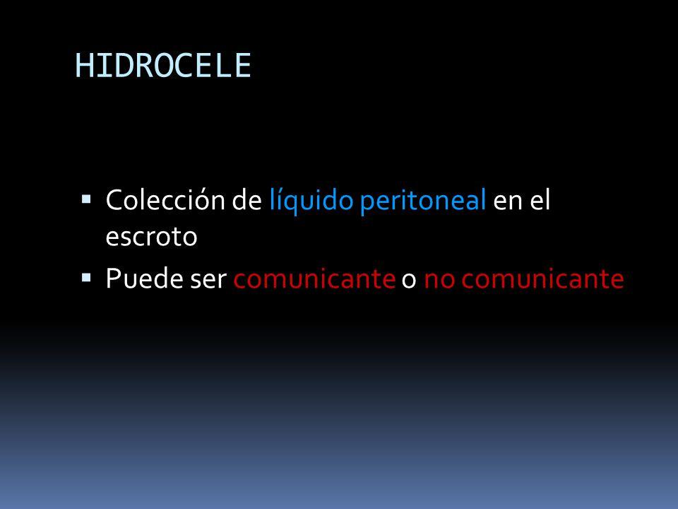HIDROCELE Colección de líquido peritoneal en el escroto
